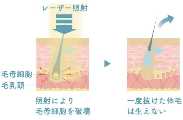 ミセルクリニックの医療レーザーの仕組み断面図。照射により毛母細胞を破壊。一度抜けた体毛は生えない。