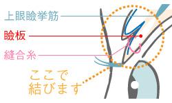二重整形に特化した医療用縫合糸を使用し瞼板に糸を留める一般的な埋没法