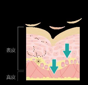 水光注射がお肌に与えるメカニズムを説明する断面イラスト1 肌の弾力やハリが失われている状態