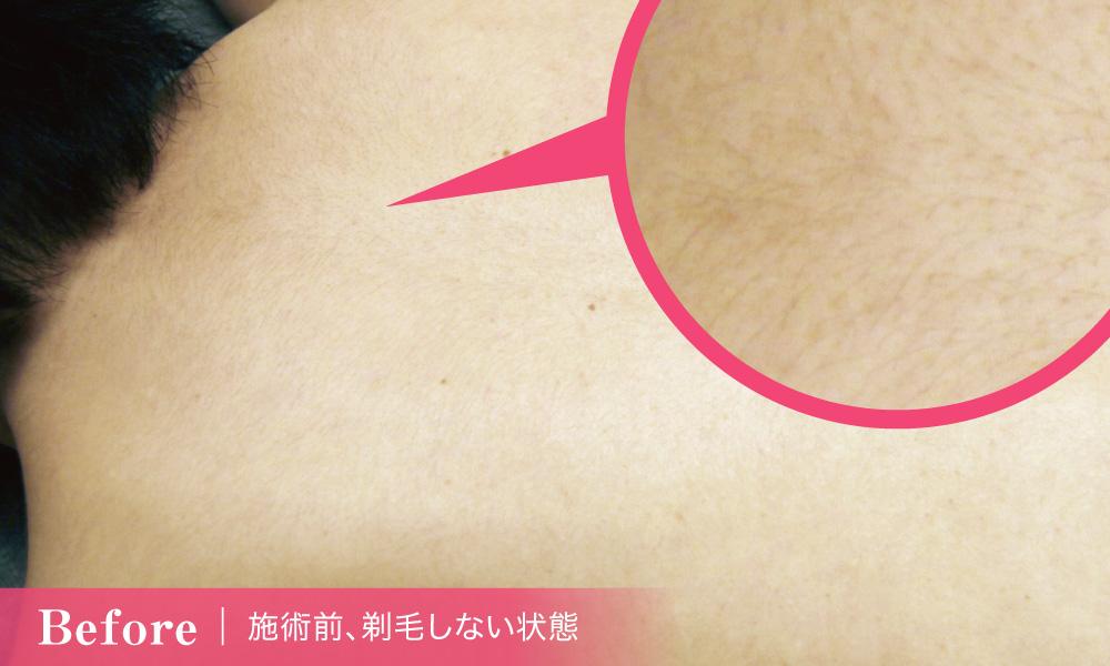 背中の医療脱毛【1回目】体験談_施術前の脱毛しない状態