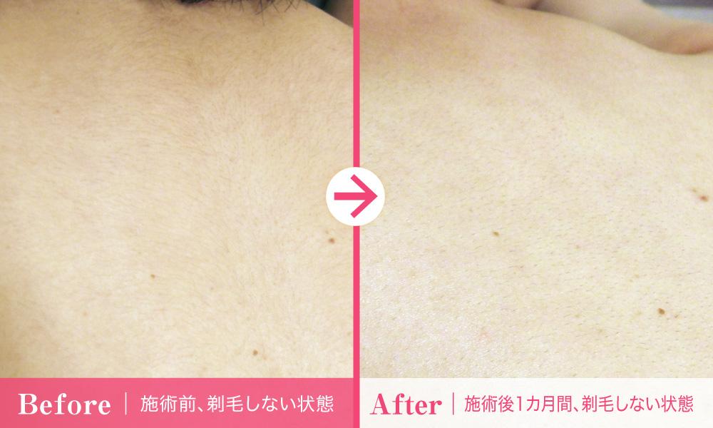 背中の医療脱毛【1回目】体験談_施術前・施術後比較写真