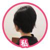背中の医療脱毛【1回目】体験談