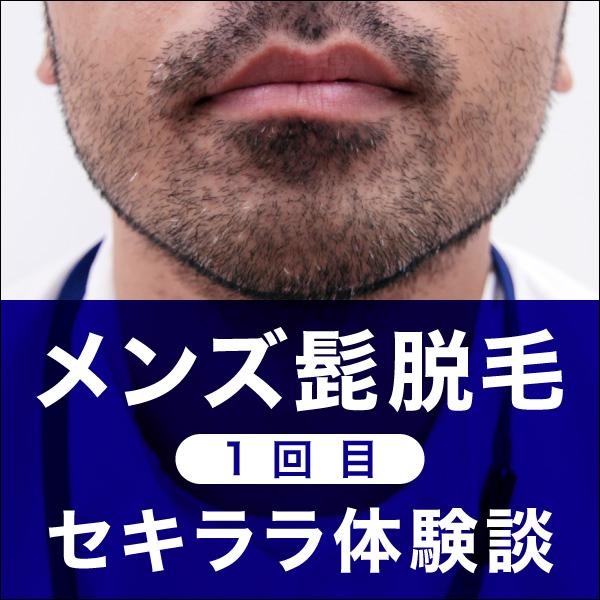 メンズ髭の医療脱毛に挑戦!【1回目】セキララ体験談