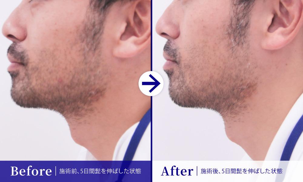 メンズ髭医療脱毛1回目 比較 左