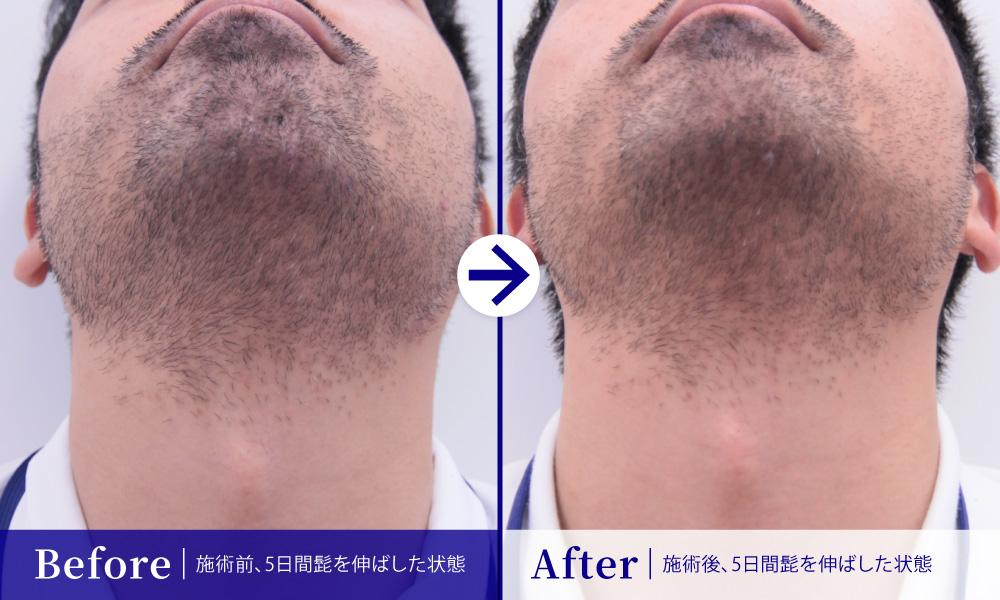 メンズ髭医療脱毛1回目 比較 あご下