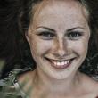 顔全体に広がる肝斑って?効果的なレーザー治療