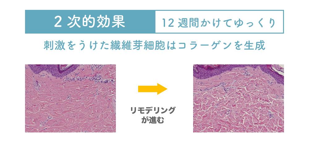 コラーゲンの生産量が増加して、ハリ・ツヤのある素肌に導きます。  これを「第2次的効果」