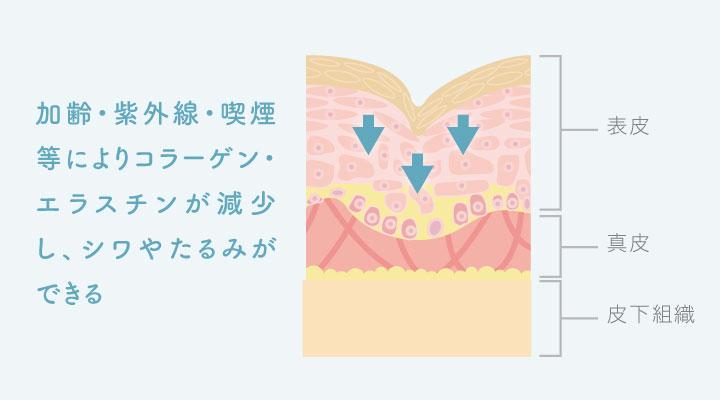シミやたるみはなぜできる?効果的な美肌対策とは ミセルクリニック