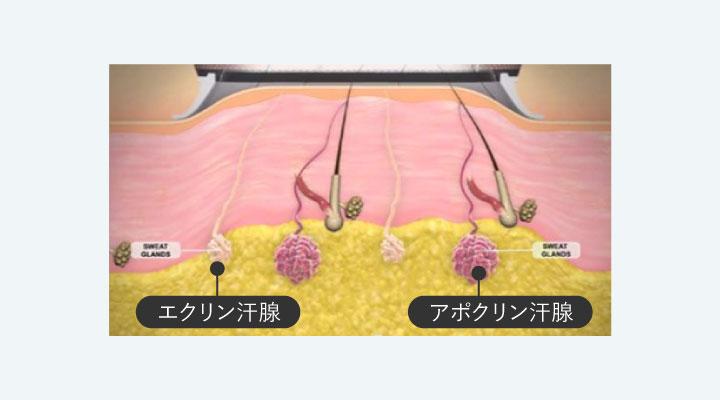 ワキガの種類は何がある?手術不要な最新治療法とは ミセルクリニック