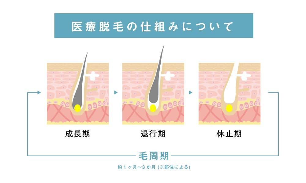 ミセルクリニック 医療ダウt網の仕組みについて 毛周期