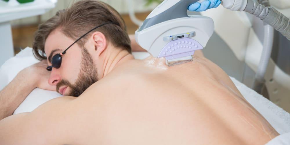 ミセルクリニック 男性医療脱毛 自己処理が不要になる回数