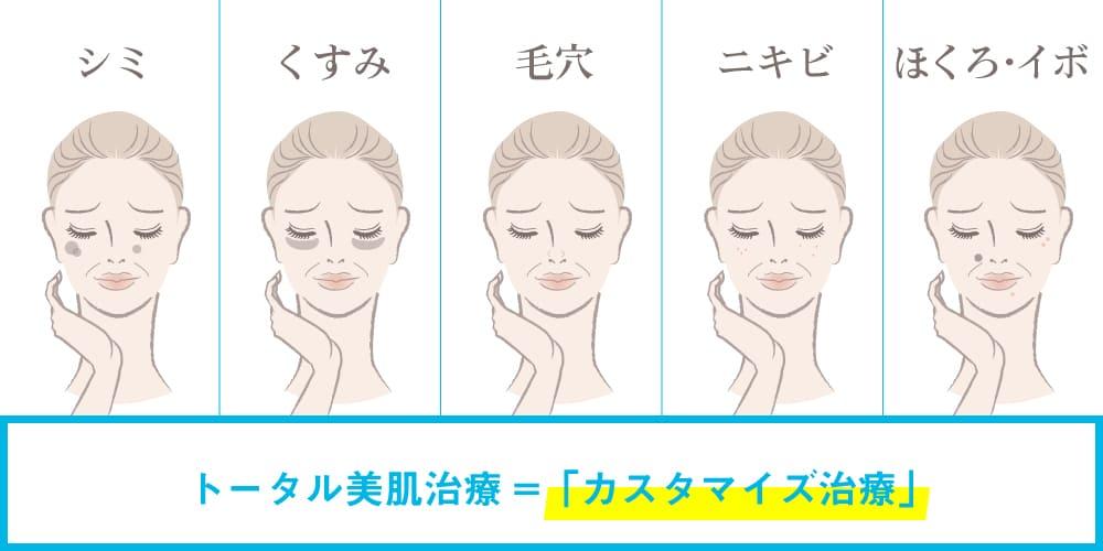 ミセルクリニック トータル美肌治療!「カスタマイズ治療」