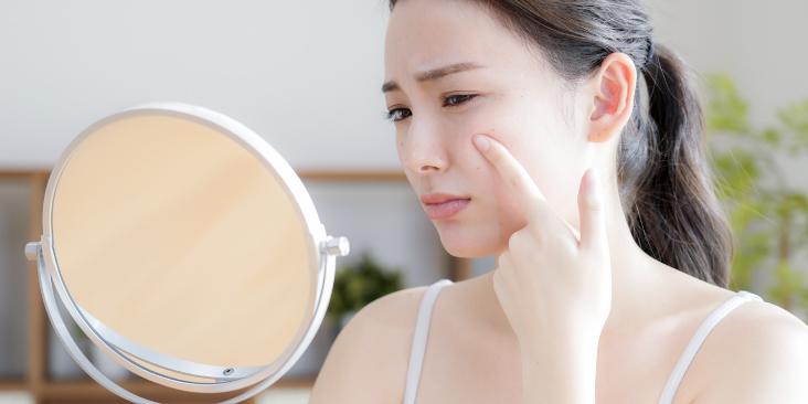 ニキビの原因と対策を考えて綺麗な肌を保とう